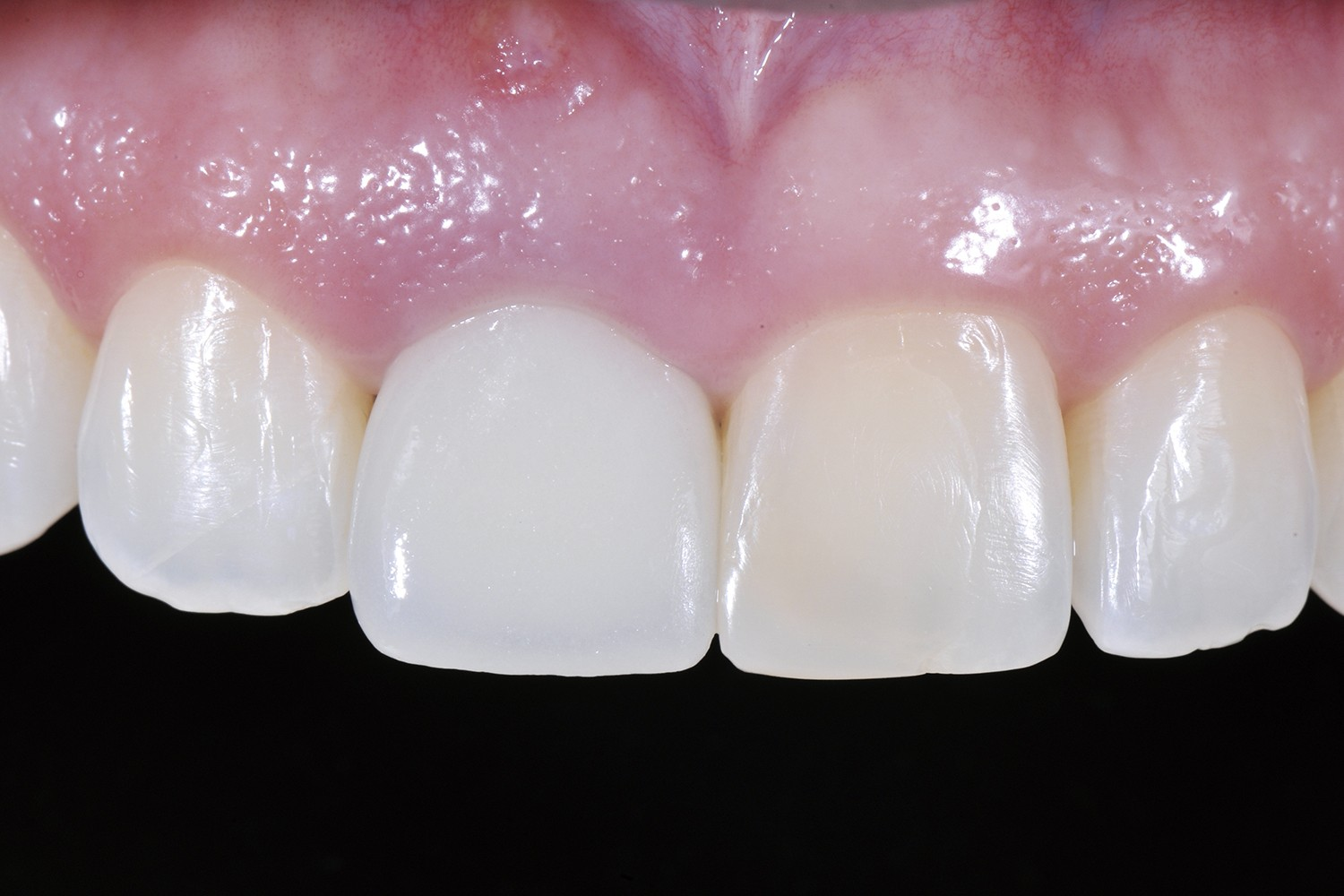 The aesthetic challenge of implant- and tooth-supported anterior rehabilitations
