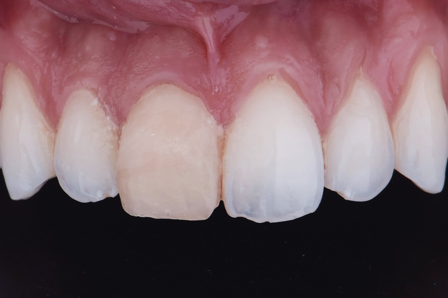 Extensive fracture of an anterior vital tooth: a biological and aesthetic challenge