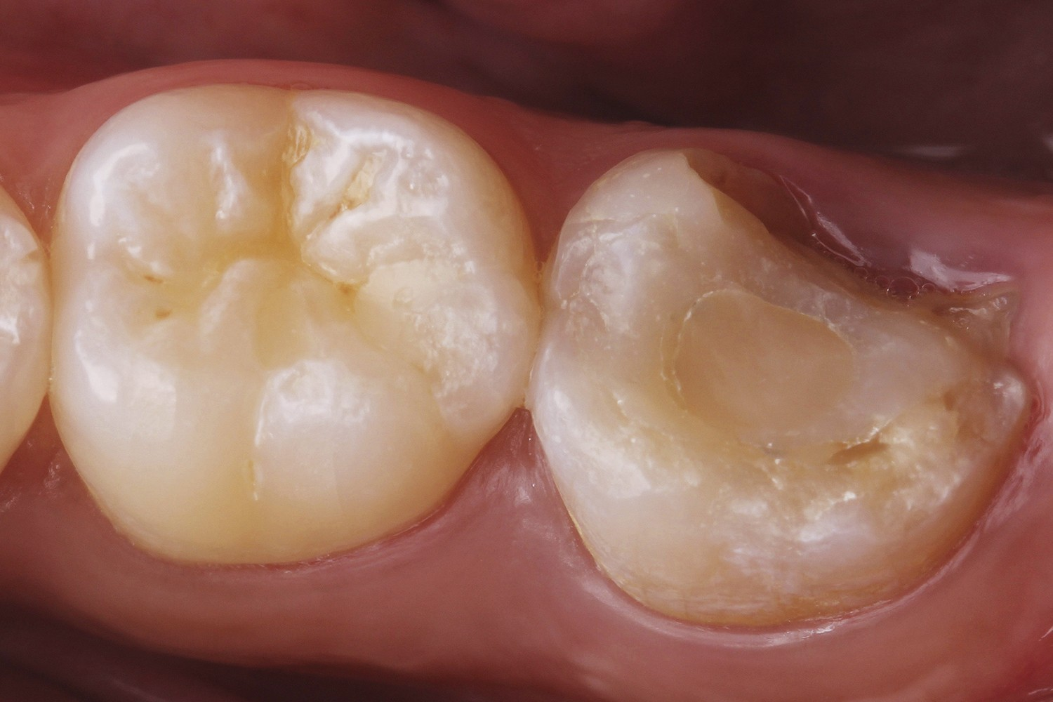 A conservative approach for a tooth fractured at the cusp: A long-term clinical report