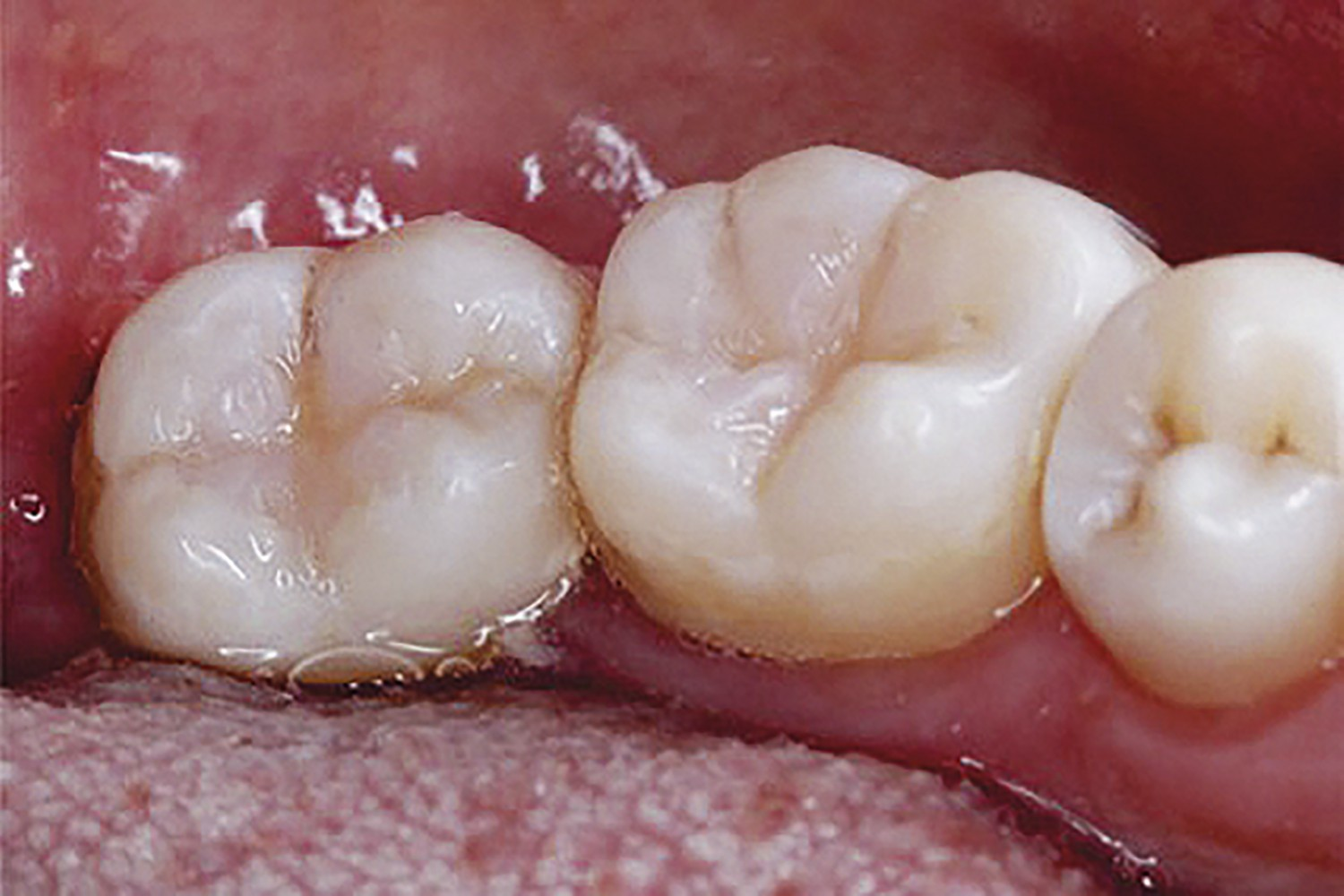 Use of bulk fill resin in Class I cavities