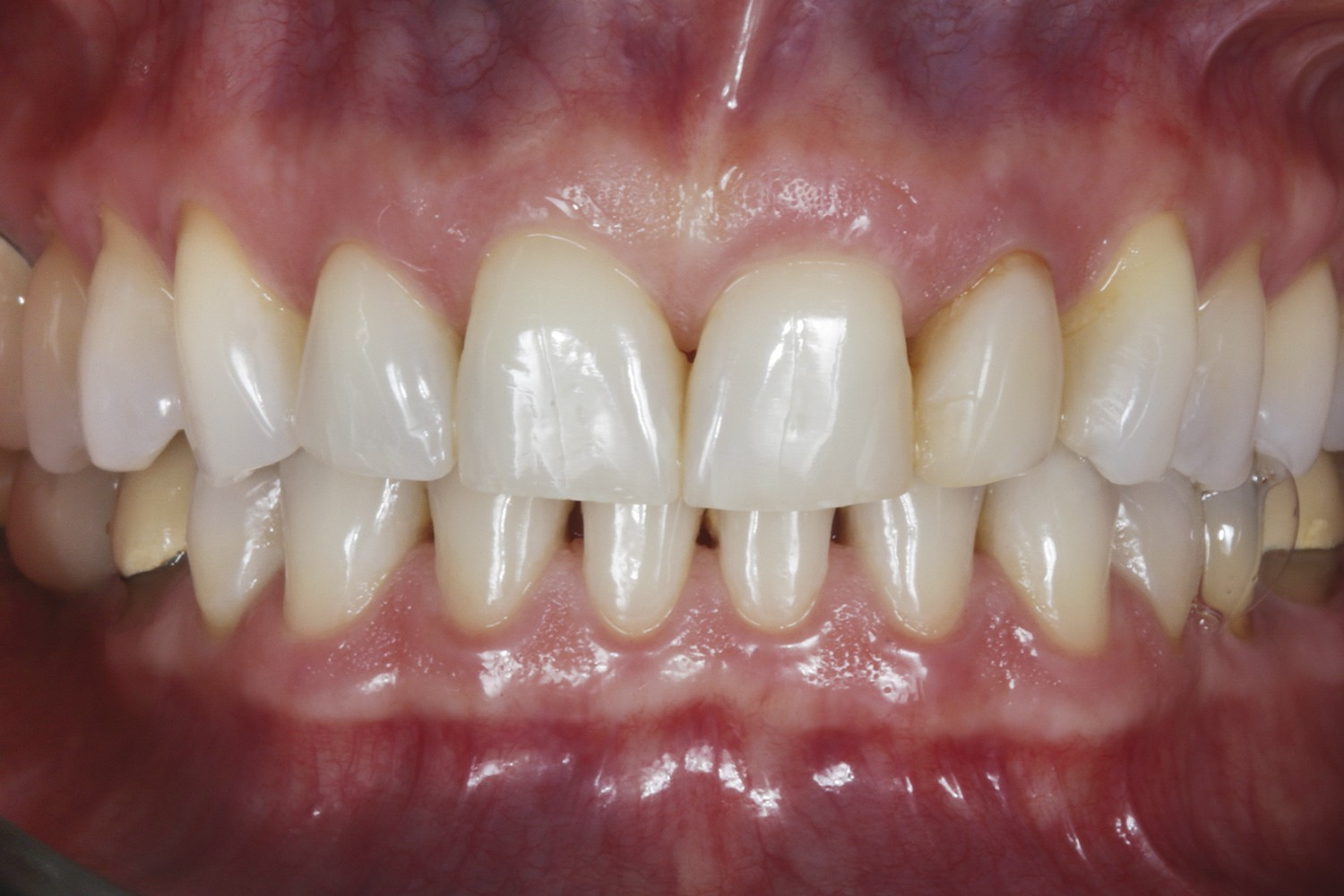 Occlusal plastic rehabilitation: Case report