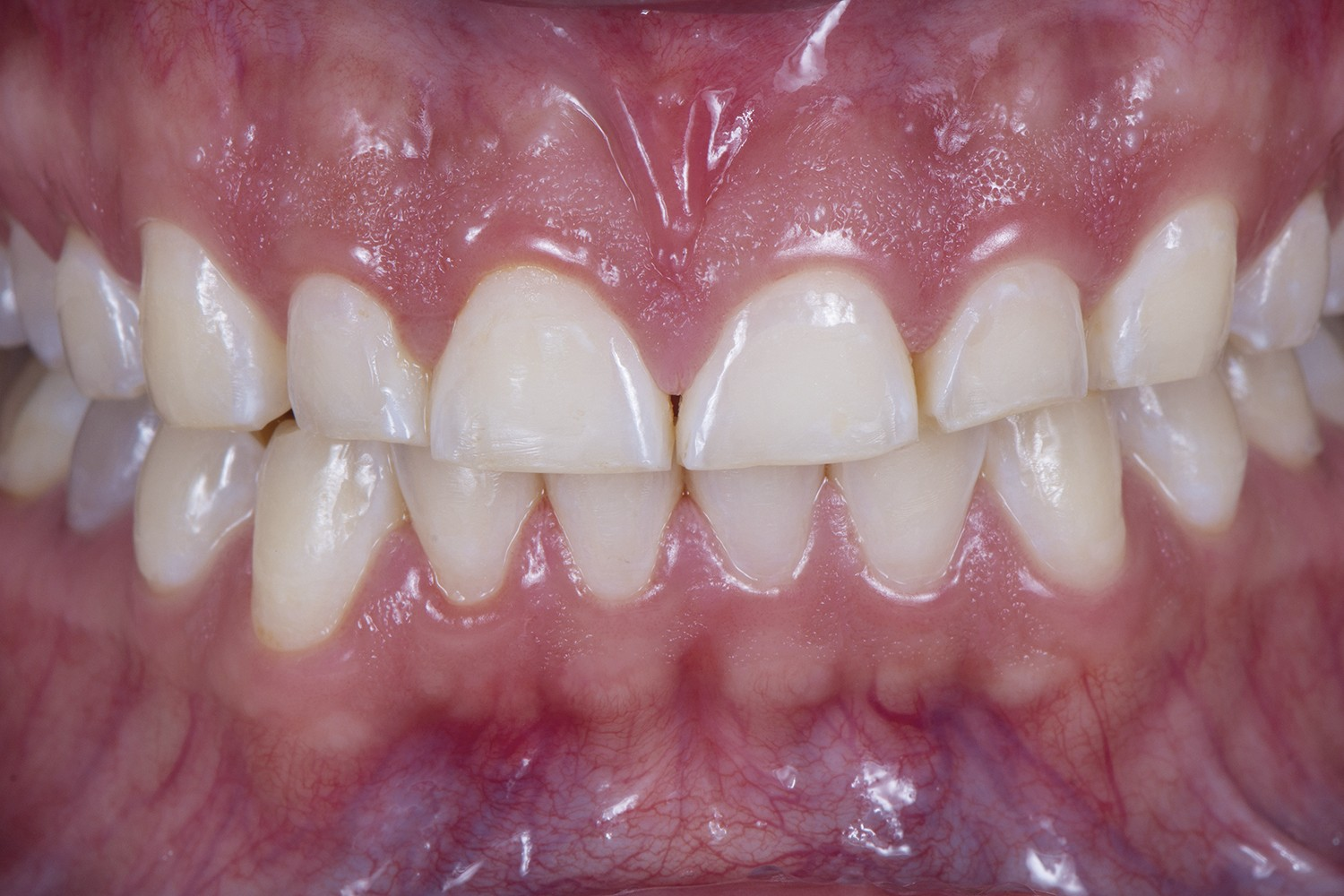 Injected flow resin: Transitional non-prep restorations